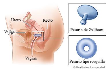 Prolapso del tero, leve, total, grados, sntomas, causas